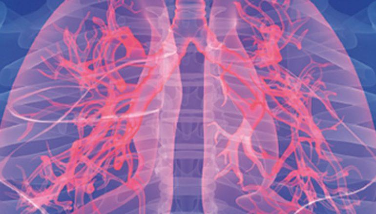 10 vragen over longontsteking