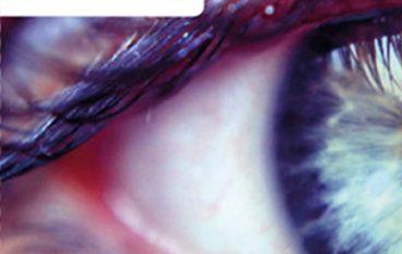 Gezonde ogen