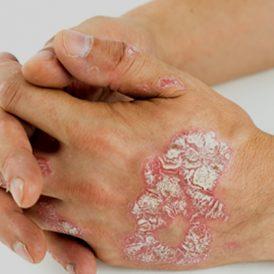 Psoriasis: meer dan een huidaandoening