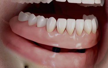 Een gebit op implantaten, is dat wat voor mij?
