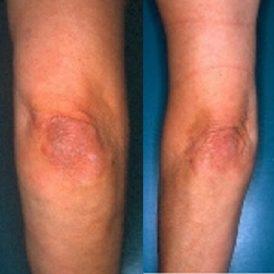 Psoriasis: een immuun probleem