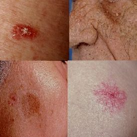 Huidtherapie en ouderen