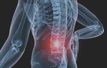 Osteoporose en springen voor sterke botten